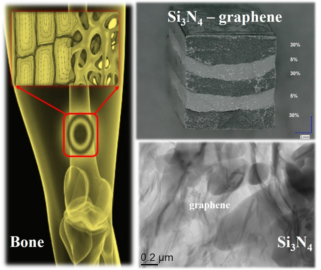 The solid-porous structure of bone and structure of the developed layered functional gradient Si3N4-graphene ceramic composite.